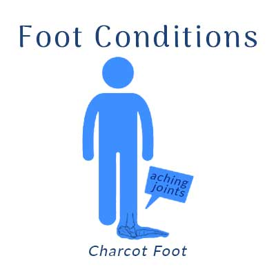 Nobile Shoes treats foot conditions such as charcot foot