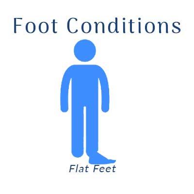 Nobile Shoes treats for flat feet