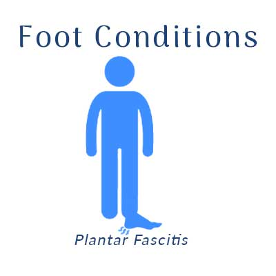 Nobile Shoes treats with Plantar Fascitis
