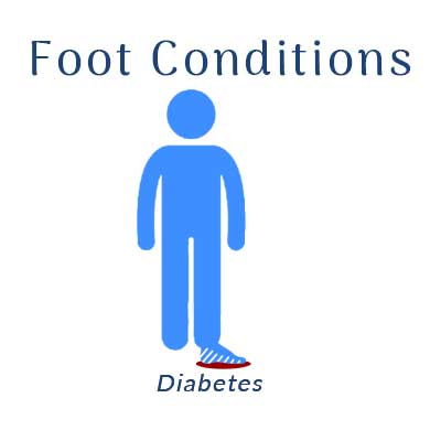 Nobile Shoes treats for foot conditions with Diabetes