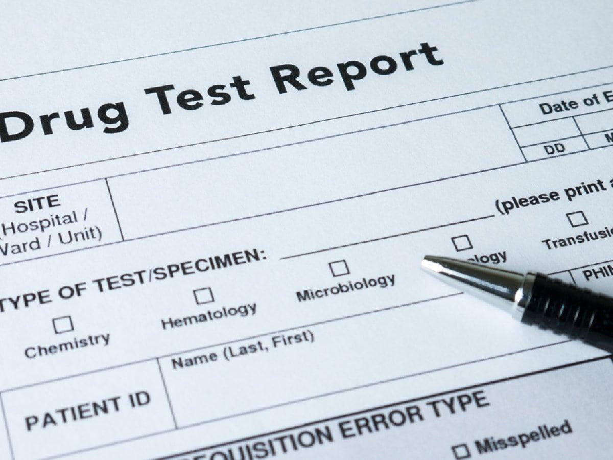 Does CBD Show Up On A Drug Test?