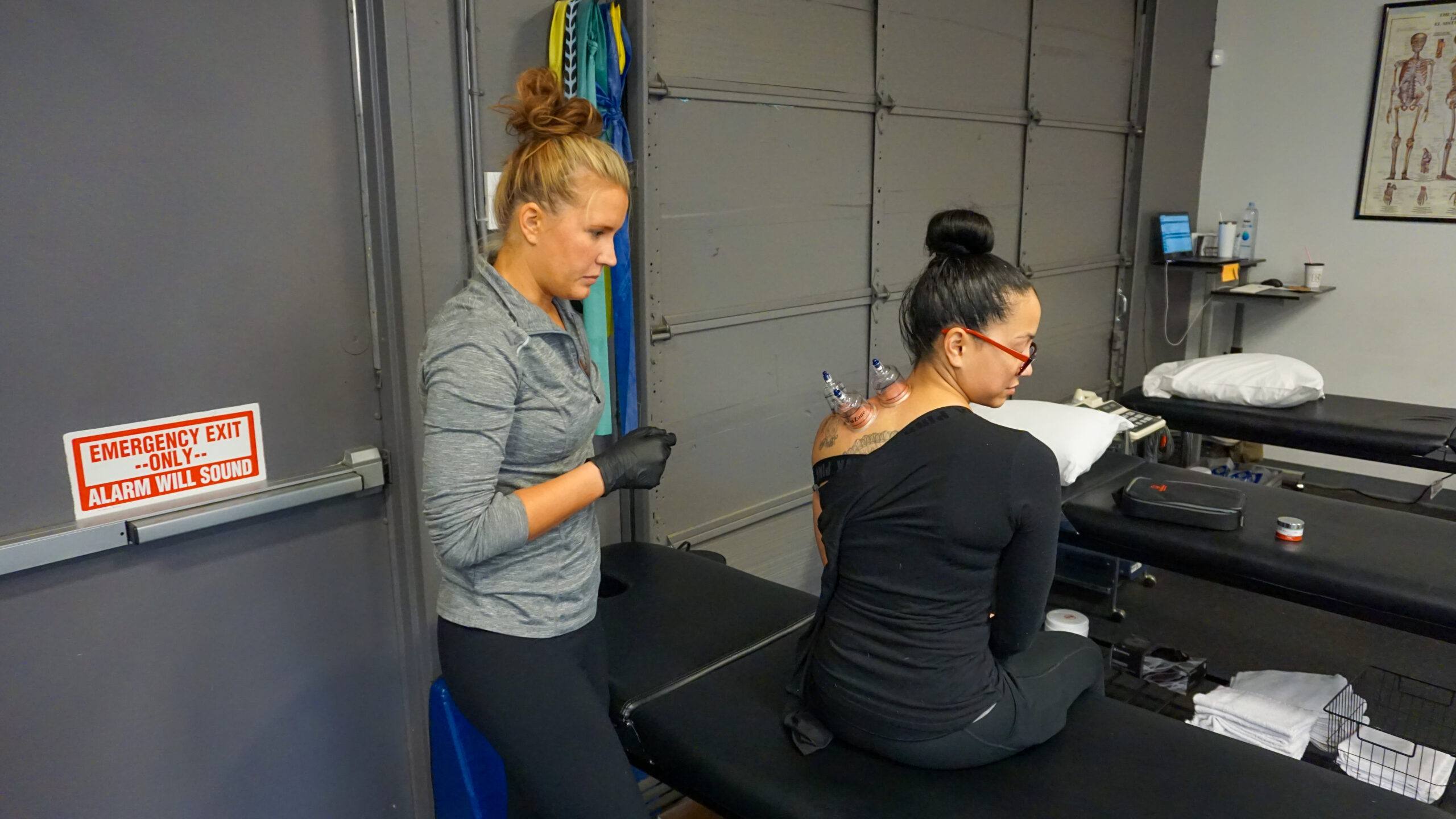 Cupping Therapy-Physical Therapy Near me