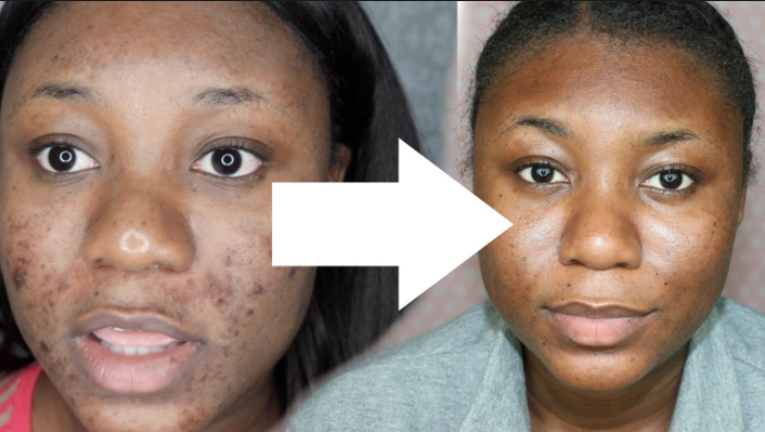 Chemical Peel Results After a Glycolic and Salicylic peel