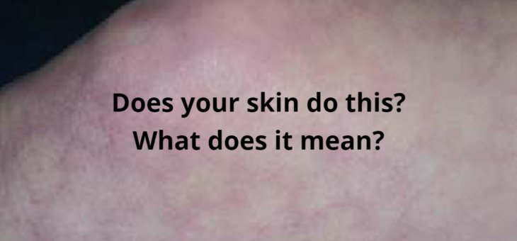 Livedo reticularis and what it could mean