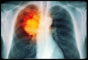 lung-cancer-s5-lung-cancer-xray