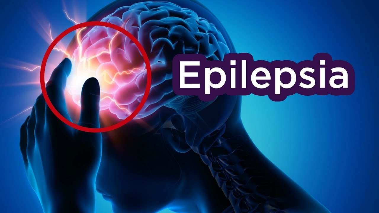 Positivo: Un OFF Switch pa Epilepsia