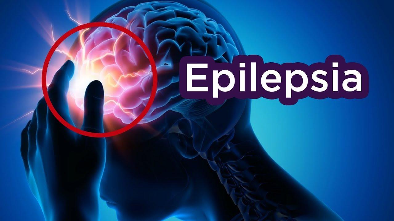 Positivo: Un OFF Switch pa Epilepsia