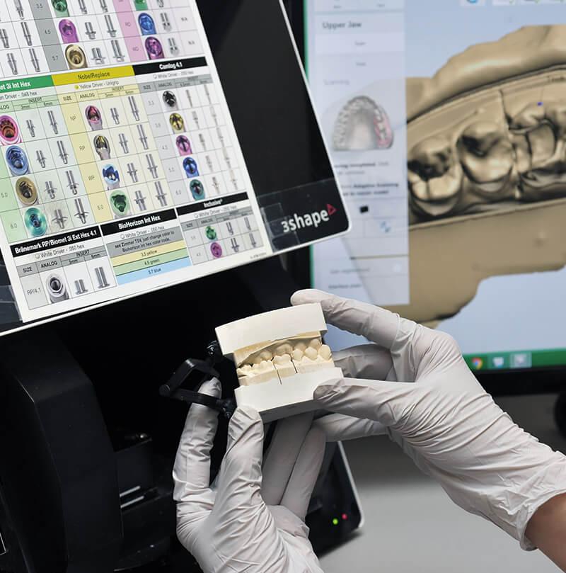 CAD/CAM Technology - iTec Dental Laboratory - Irvine