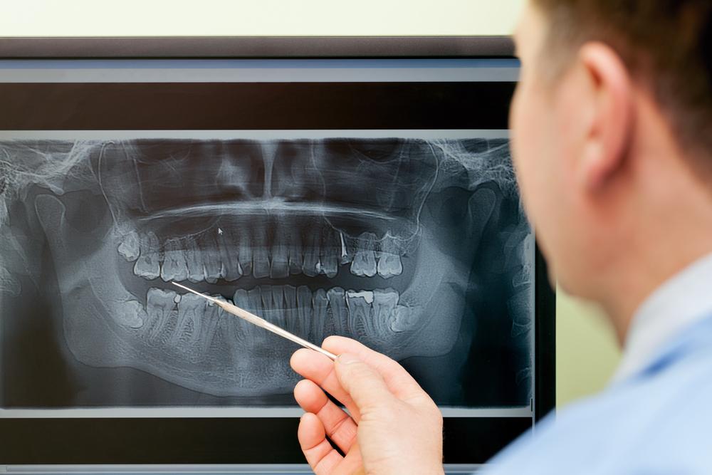 Kitchener dentures