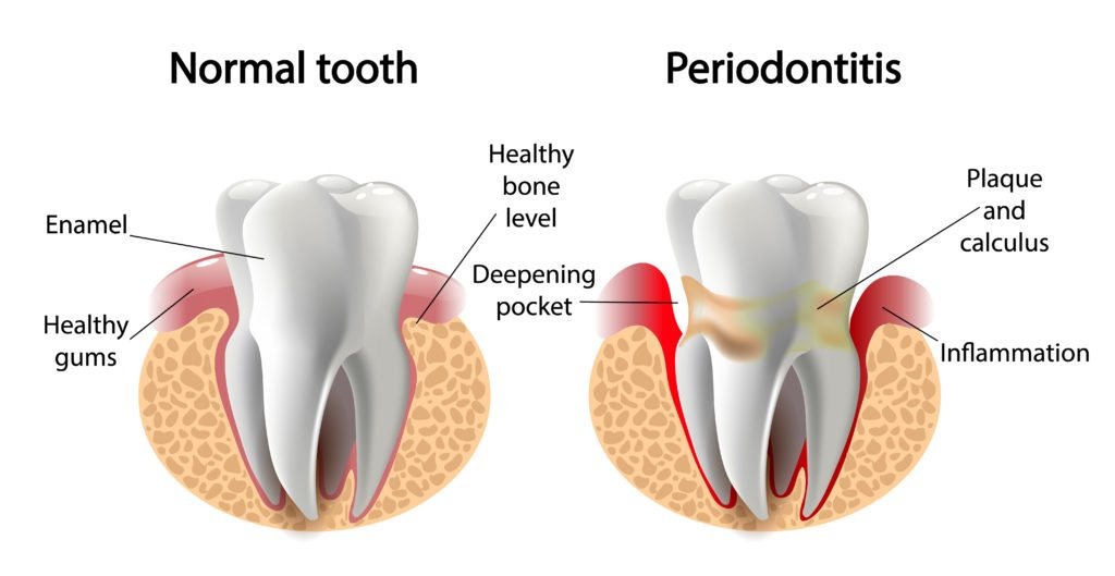 Vector image comparing a healthy tooth and one infected with periodontitis