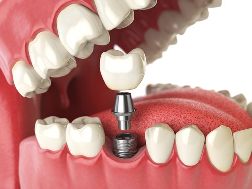 Dental Implant Kitchener