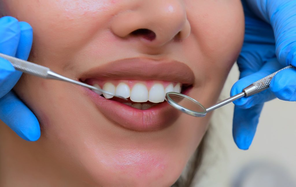Close up of a mouth slightly opened, exposing teeth and surrounded by a dental mirror and dental probe