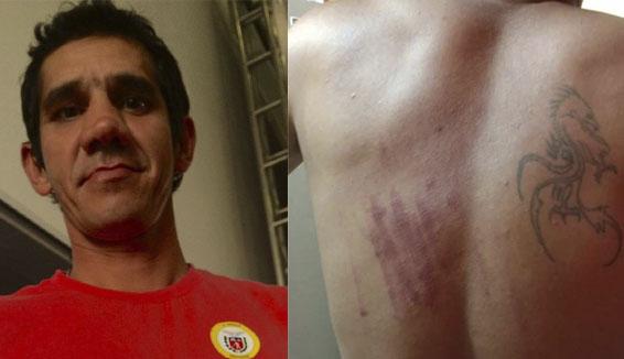 Photo of Pintor e ativista é espancado na rua em Paranaguá