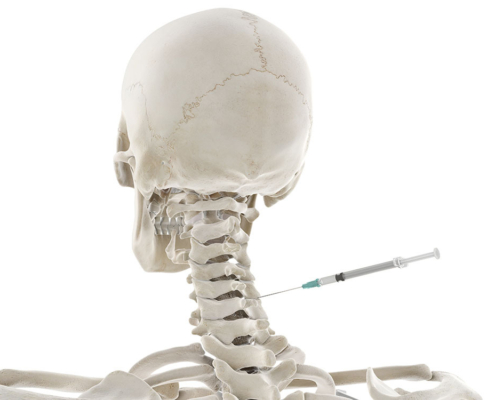 Back of skeleton with syringe going into neck spine area
