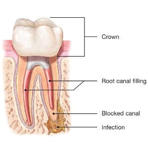Endodontic Retreatment Blacksburg Virginia