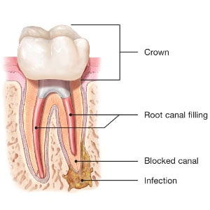 What is Endodontic Retreatment, and When Do You Need It?