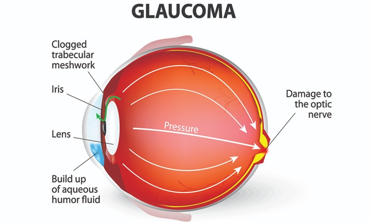 GLAUCOMA01