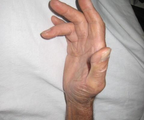 Arthritis, Scarborough, ON