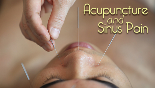 Acupuncture and Sinus Pain