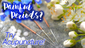 Painful Periods? Try Acupuncture
