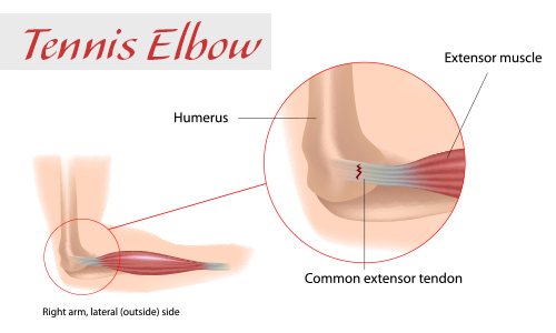 Acupuncture treats tennis elbow