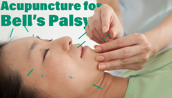 Woman receiving facial acupuncture treatment