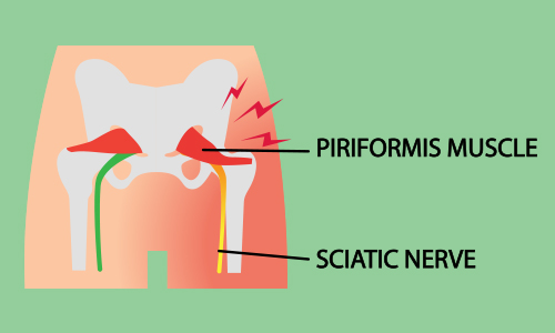 illustration of where sciatica pain is located