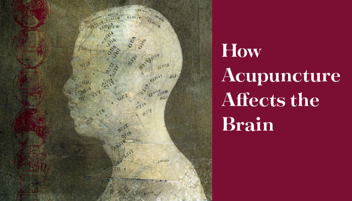 How Acupuncture affects the brain header image for blog