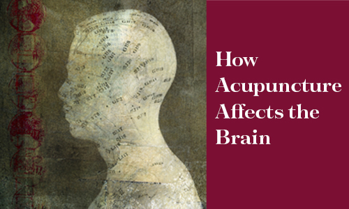 How Acupuncture affects the brain featured image