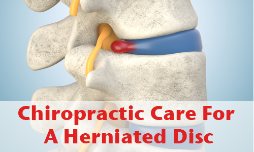 Main blog image with title 'Chiropractic Care for A Degenerated Disc'