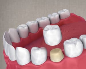 Custom color-matched dental crowns