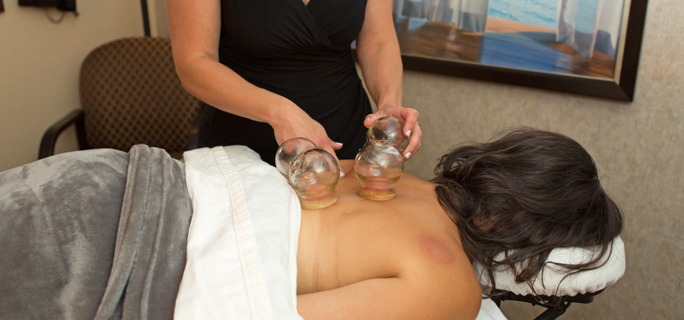 cupping-treatment
