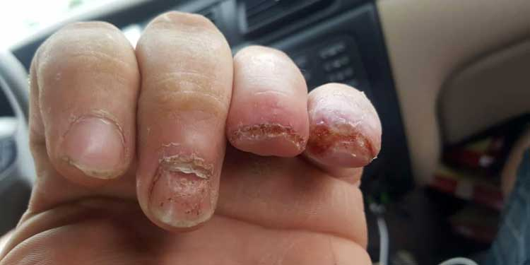 Shortened fingers of Jimmy Carr of the Niagara Devils after radial arm saw injury.