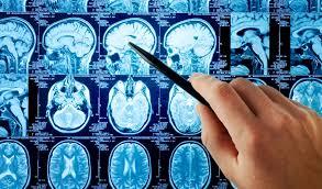 Medical Billing Neurology