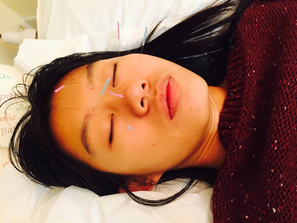 boca raton facial acupuncture service