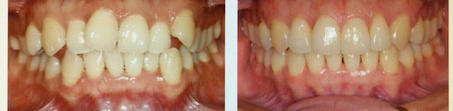 before and after picture from patient using Invisalign