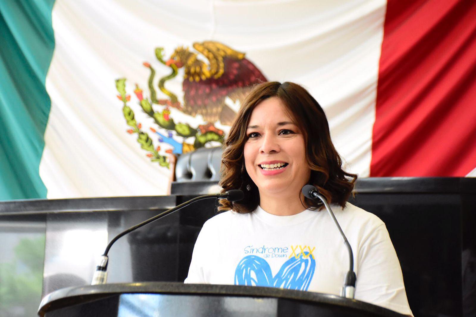 Mejorar la calidad y condiciones de vida de personas con síndrome de Down debe ser prioridad: Rocio Sarmiento