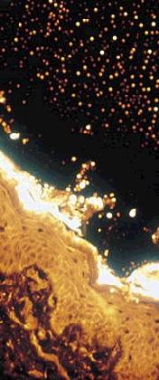 rhodamine skin compressed
