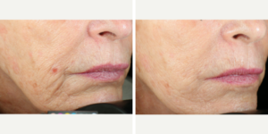 Smile Lines Treated with Vivace