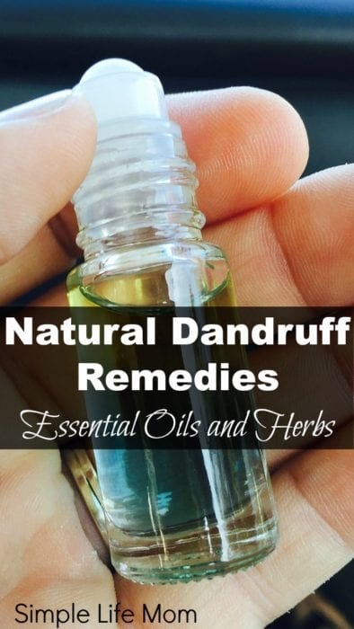 Natural Dandruff Remedy - essential oils and herbs from Simple Life Mom