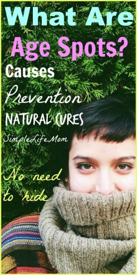 What Are Age Spots - causes, prevention, and natural cures