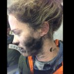 Women Suffers Burns After Her Headphones Exploded.