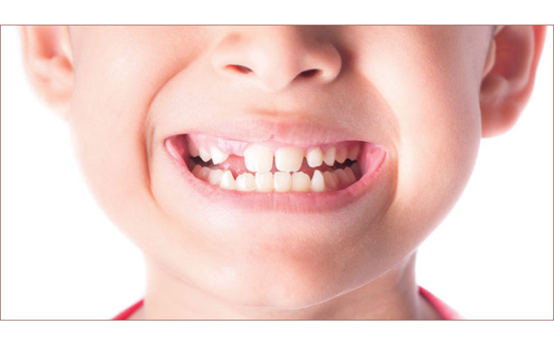 Setting the dental record straight