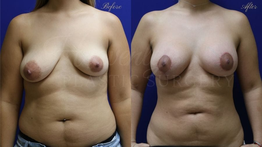 Plastic surgery, plastic surgeon, breast augmentation, breast implants, augmentation mammaplasty, before and after breast augmentation, bigger breasts, bigger boobs, breast lift, mastopexy, liposuction
