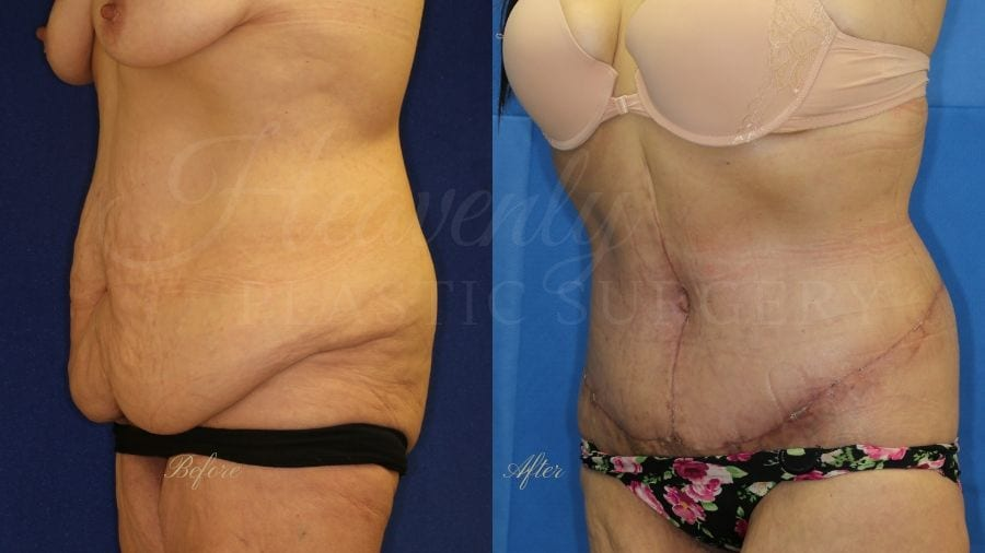 Tummy Tuck, Abdominoplasty, Liposuction, before and after bodylift, plastic surgery, plastic surgeon, bodylift