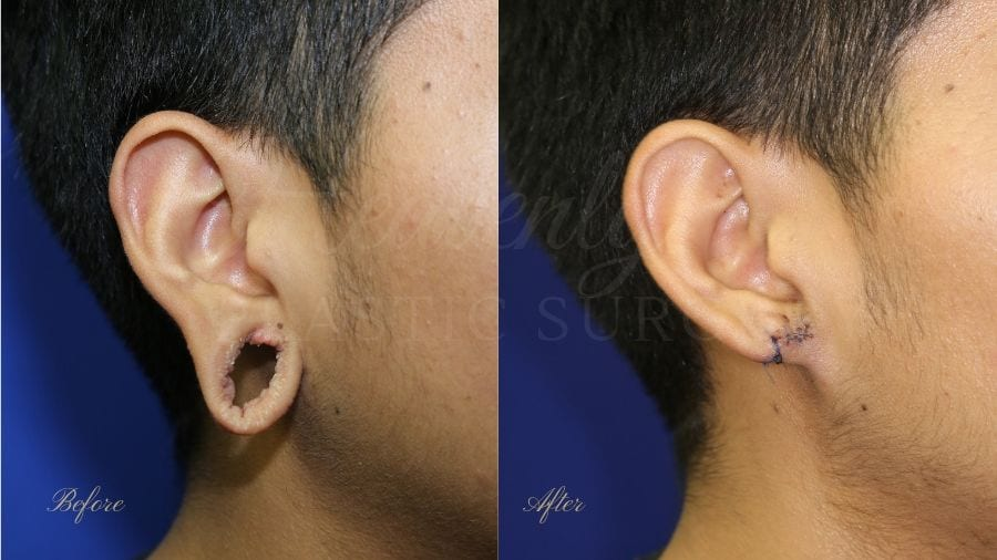 Plastic surgery, plastic surgeon, earlobe repair, before and after