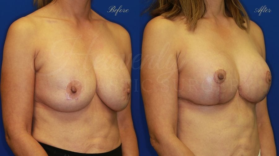 Plastic surgery, plastic surgeon, breast augmentation, breast lift, mastopexy, remove and replace implants, implant exchange, breast implants