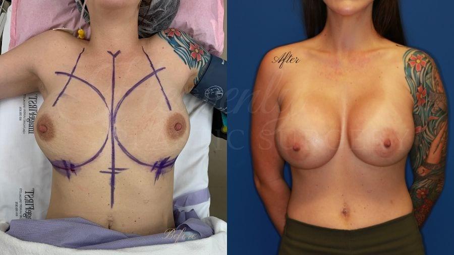 Plastic surgeon, plastic surgery, breast augmentation, breast implants