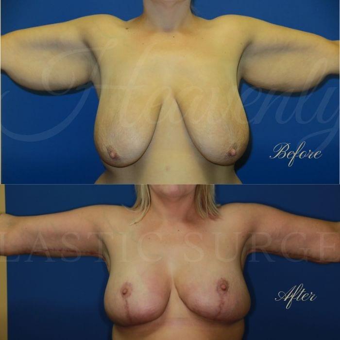 Arm lift, Brachioplasty, breast lift, mastopexy, breast reduction, reduction mammaplasty