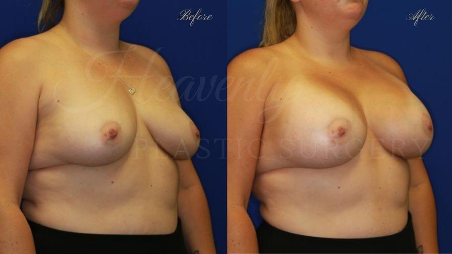 Plastic Surgery, Plastic surgeon, breast augmentation, breast implants, augmentation mammaplasty